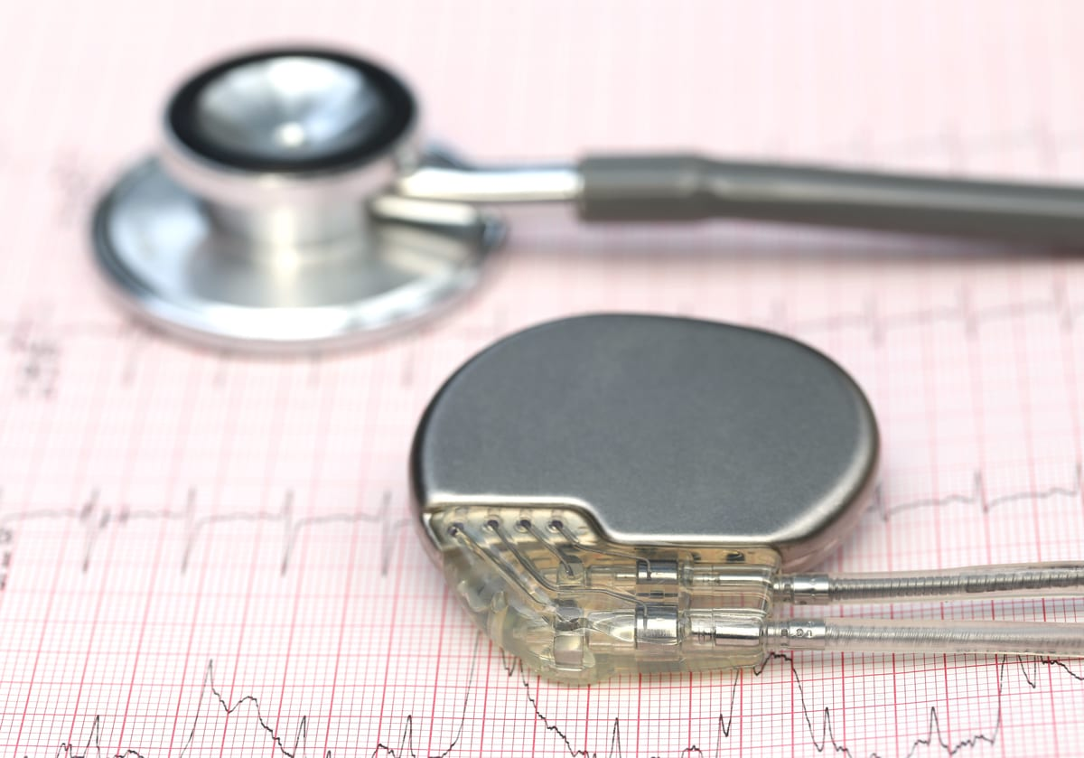 4 Common Prerequisites for Pacemaker Implantation Surgery