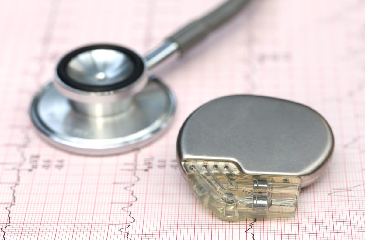 Things To Look For In Your Pacemaker Implantation Surgeon